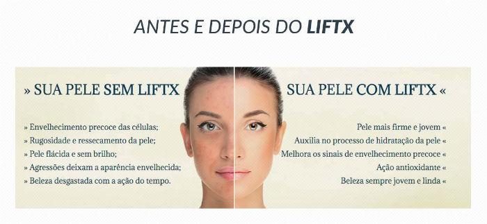 lift-x-antes-e-depois